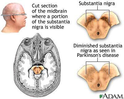 Parkinsons-Disease2